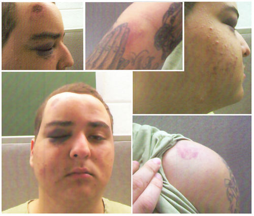 Daniel Cortes, after his run-in with North Lauderdale cops Tucciarone, Novello, and Sokol.