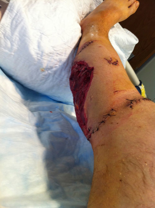 Segrich's leg after the attack.
