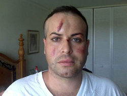 Tony Lopez, a gay makeup artist, suffered a concussion after an attack in South Beach.