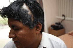 Germán Gomez usually combs his thick hair over the scar left by a bullet from the gun of Deputy Lewis Perry.