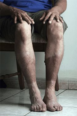 Carlos' legs, burned as badly as any place on his body